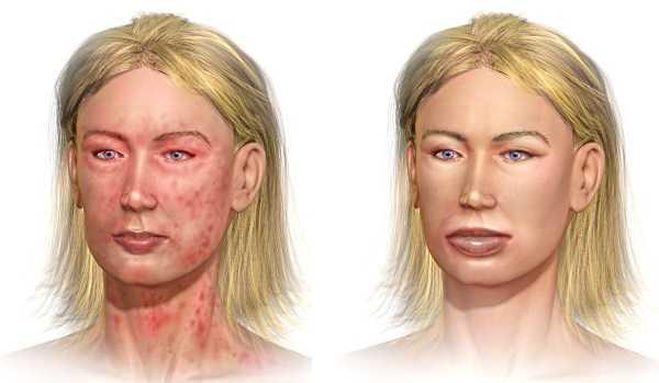 Чем опасны укусы клопов: анафилактический шок
