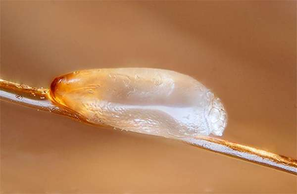 Яйца головных вшей