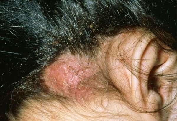 Чем опасно отсутствие лечения вшей у детей (дерматит)